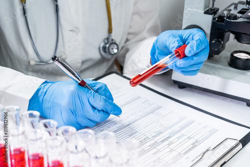 Papel de parede Blood test tubes