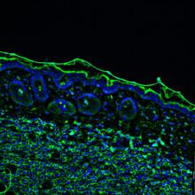 Tumour Immunofluorescence IHC Image. Aggressive Metastatic Melanoma Tumor Cells In Green With Blue Nuclei Invading Into The Skin.