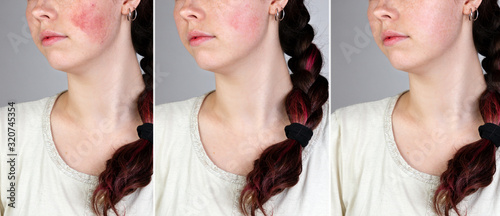 A series of images of a young caucasian woman's face showing redness and inflamed blood vessels on her cheeks and the result after treatment. Gray background. The concept of rosacea. Close up