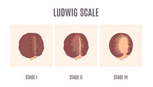 Female-pattern Hair Loss By Ludwig Scale. 3 Stages Of Baldness In Women. Classification Of Alopecia Shown On A Head In Top View. Beauty And Health Care Concept. Medical Vector Illustration.