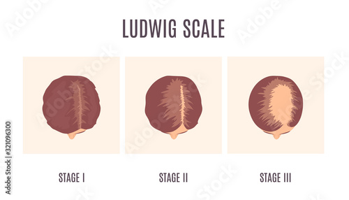 Female-pattern hair loss by Ludwig scale Canvas Print