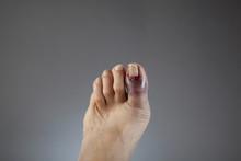 Broken Toe On Left Foot