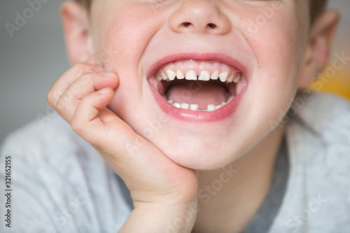 Fotografija Teenager child with a tooth dropped out
