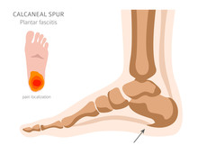 Calcaneal Spur. Plantar Fasciitis Set. Medical Desease Infographics Collection