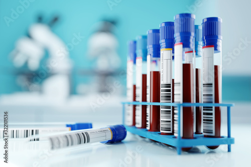 A row of human blood samples in a medical laboratory ready to be tested. healthcare background 3D illustration. - 322101536
