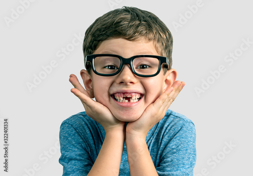 Canvas Print Very expresive toothless smile boy with hands on face and big eyeglasses