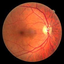 View Inside Human Eye Disorders - Showing Retina, Optic Nerve And Macula.Medical Photo Tractional Retinal Detachment Of Diabetes.Eye Treatment Concept.select Focus.