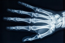Human Adult Female Right Hand Bones X-ray Image. Medical And Anatomy Radiography Or Imagery.