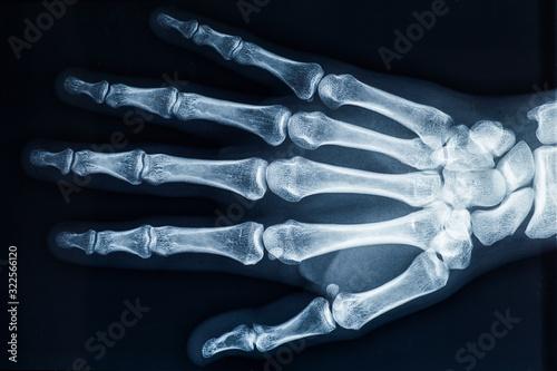 Photo Human adult female right hand bones x-ray image