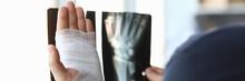 Male Bandaged Hand Holds Xray ...