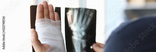 Photo Male bandaged hand holds xray image closeup