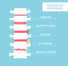 Degenerative Disc Disease. Spinal Arthritis. Vertebral Hernia