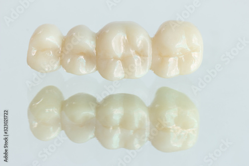 4 units​ zirconia​ bridge​ with​ all porcelain with a reflection on the glass Tapéta, Fotótapéta