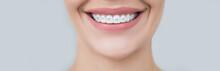 Perfect Female Smile, Teeth Af...