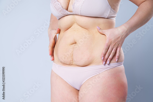 Obraz na plátně Tummy tuck, flabby skin on a fat belly, plastic surgery concept