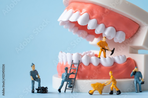Miniature people of the teeth cleaning workers are medical and health care concepts Canvas Print