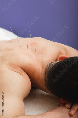 Photo Man with acupuncture needles in his back is receiving treatment in a traditional Chinese medicine clinic