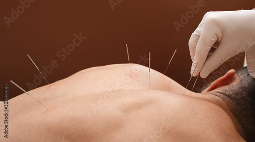 Photo Close-up needle in the back of man during acupuncture procedure on a brown background