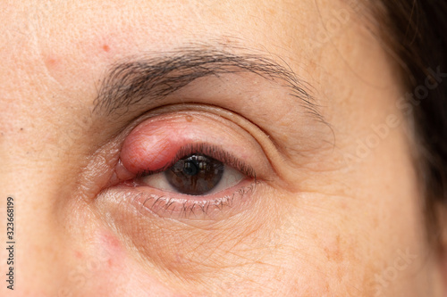 Chalazion on lady's eye, swelling and inflammation of the upper eyelid Canvas Print