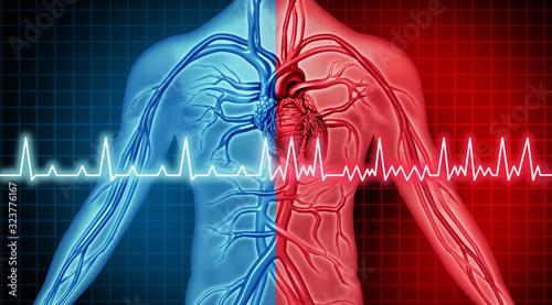 Atrial Fibrillation Disorder Canvas Print