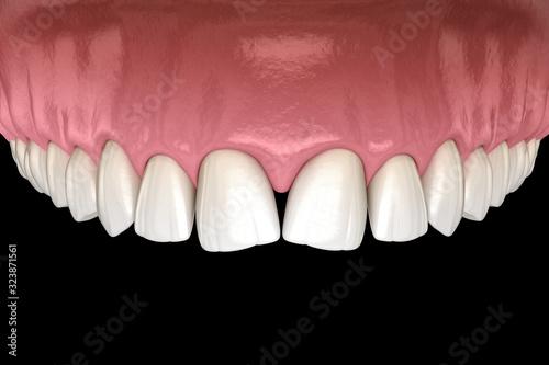 Convergent diastema of central incisors teeth Fototapet