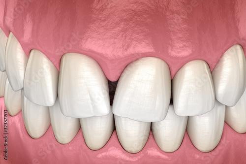 Fényképezés Convergent diastema of central incisors teeth