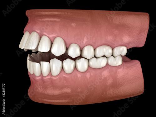 Openbite dental occlusion ( Malocclusion of teeth ) Wallpaper Mural