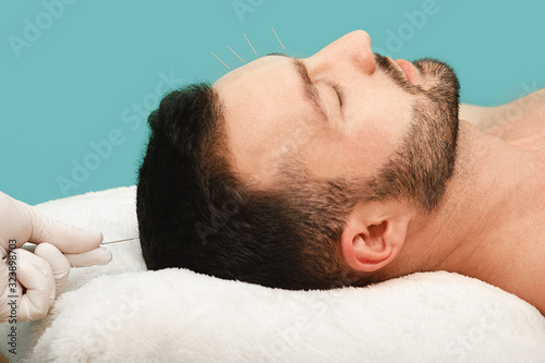 Photo Acupuncturist inserting acupuncture needles into patients skin head