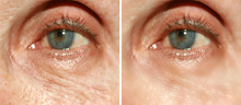 Wrinkles Under The Eyes. Wrink...