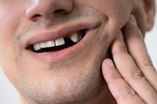 Man Having Toothache