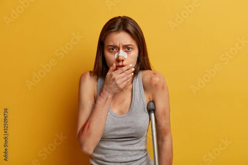Frustrated disappointed woman has bleeding nose after slipping on ice, broken leg, covers face, looks sadly at camera, isolated on yellow background Fototapet