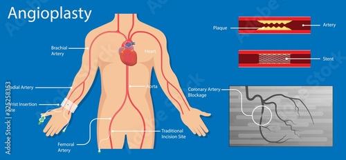 Photo Cardiac catheter ablation Atrial fibrillation minimally invasive procedure