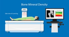 Bone Mineral Density (BMD) Ost...