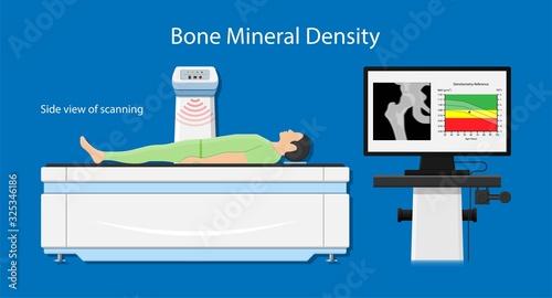 Fotografía Bone mineral density (BMD) osteoporosis dual energy X-ray