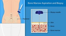 Bone Biopsy Medical Marrow Harvest Stem Cell Transplants Aspiration Specimen Cancer Procedure Sample Test Treatment Diagnosis Anemia Blood Cell Lab