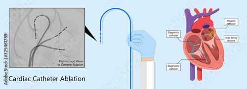 attack Cardiac catheter ablation Atrial fibrillation minimally invasive procedur Canvas Print