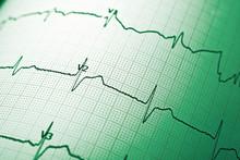 Electrocardiograph Close Up