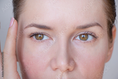 Photo asymmetry of the face and drooping eyelid
