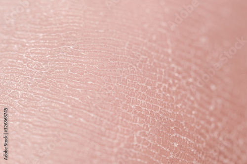 Human skin. Macro photo. Close up. Wallpaper Mural