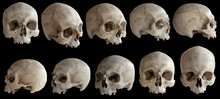 A Human Skull Without A Jaw. Isolated On Black Background.