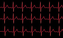 Red Cardiogram Pulse Trace On ...
