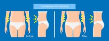 Cryolipolysis Fat Freezing Pro...