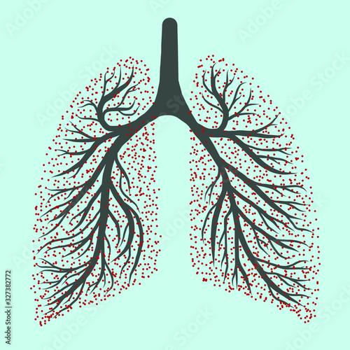 Coronavirus 2019-nCov Virus pulmonary disease drawing illustration of worlwide lung epidemic illness. Corona global probelm spread viral Fototapete