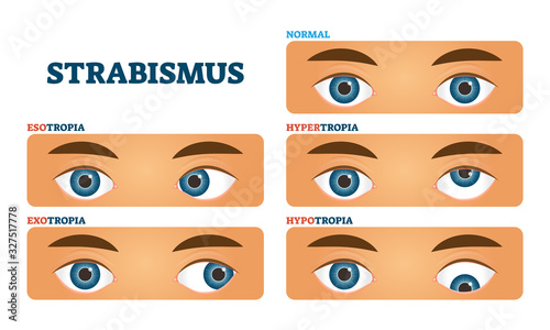 Strabismus or cross eyed vision condition, vector illustrations Canvas Print