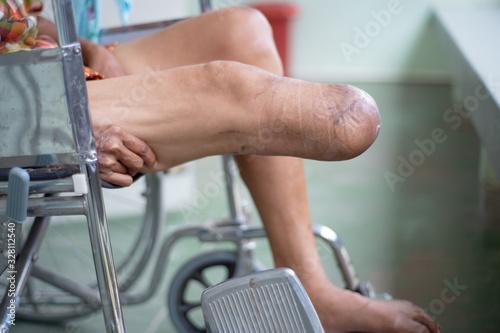 below knee amputated patient sitting on wheelchair Wallpaper Mural