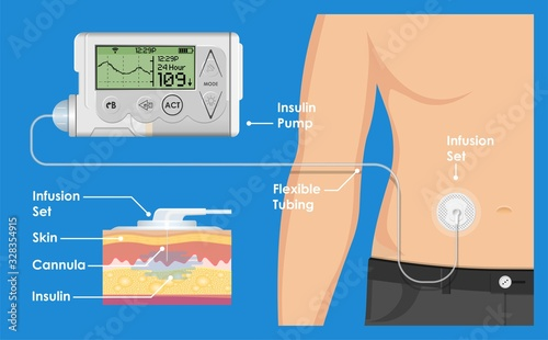 Insulin Infusion Pump on Patient Body Electronic Medical Digital Technology Devi Canvas Print