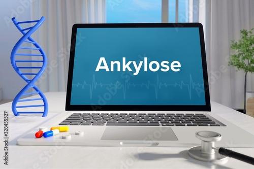 Ankylose – Medizin, Gesundheit Canvas Print