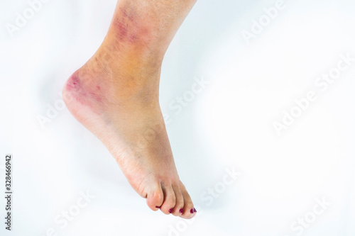 Woman's leg with sprained ankle isolated on white background Canvas Print
