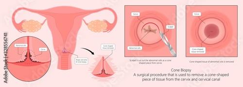 Fototapeta Cold knife cone biopsy Loop Electrosurgical Excision Procedure LEEP Large Loop E