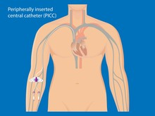 Central Venous Catheter CVC PICC Line Peripherally Inserted Access Large Vein Medication Fluid Blood IV Parenteral Chemotherapy Port A Cath Drug Dialysis Pressure Medicine Cancer Kidney Test